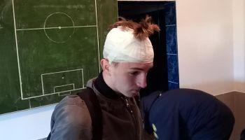 16-godišnjaka pogodio pivskom flašom u glavu
